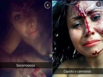 Mesmo ferida, jovem faz selfie ap�s capotar no Paran�