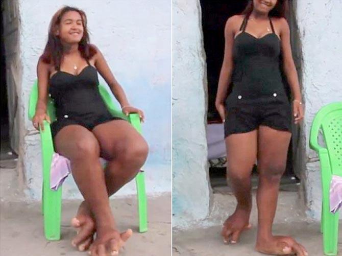 0d3aba148 Reprodução/Internet Garota tem os pés tão grandes que não consegue usar  calçado algum