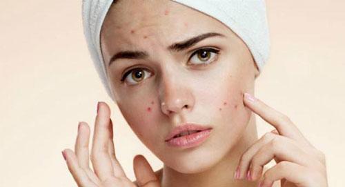 Quais as causas da acne na fase adulta?