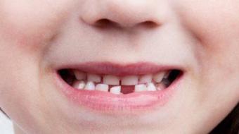 Antibi�tico enfraquece os dentes? Profissional responde