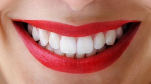 Acabe Com Suas Duvidas Sobre Clareamento Dental Clareamento Dental