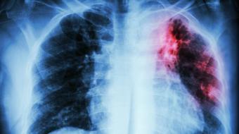 Conscientização sobre a tuberculose é essencial para o combate à doença