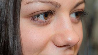 Glaucoma é uma doença que precisa de orientação para medicação correta